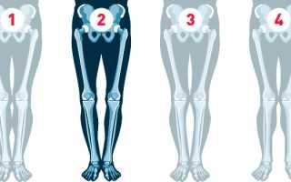 Исправление кривизны ног с помощью хирургических операций и физических упражнений. Гимнастика для эффективного выпрямления ног дома