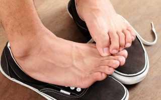 Что сделать, чтобы обувь не воняла? Что сделать чтобы ноги не воняли народные средства.