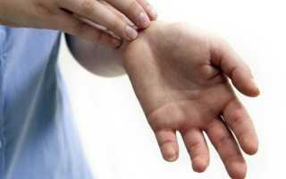 К чему чешутся пальцы? Полный список народных примет. Почему чешется безымянный палец на правой руке